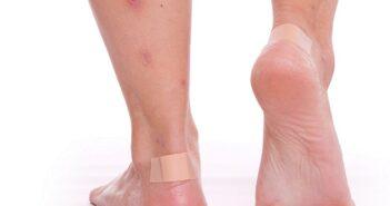 Die ganzen Beine voller Mückenstiche: Eine schlimme Vorstellung