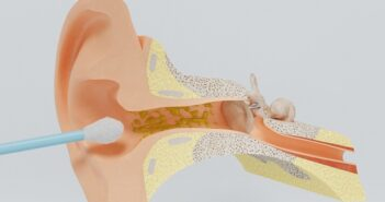 Ohrenschmalz entfernen: 5 Hausmittel, die nicht weh tun und die wirklich helfen. ( Foto: Shutterstock- Svitlana Pavliuk )